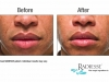 Before / After using Radiesse