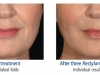 restylane-before-after-pics-2