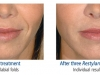 restylane-before-after-pics-4
