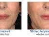 restylane-before-after-pics-5