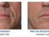 restylane-before-after-pics-6