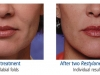 restylane-before-after-pics-7